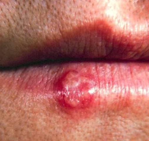 Как выглядит герпес на губах (фото) - Как выглядит