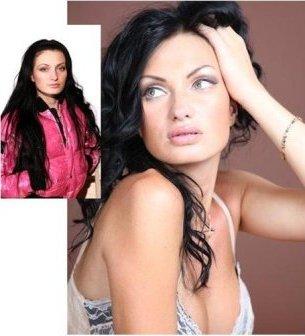 Женя Феофилактова фото после операции